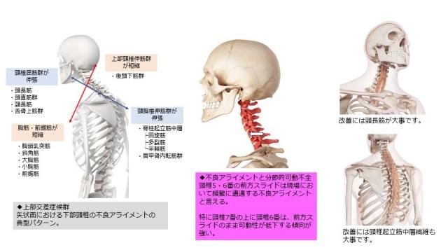 下部頸椎のコンディショニング