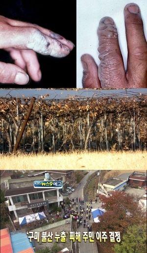 韓国 フッ化水素酸 事故 韓国でフッ酸ガス漏れ、死傷者3500人以上!