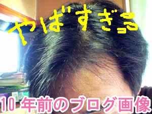 髪が薄くなった