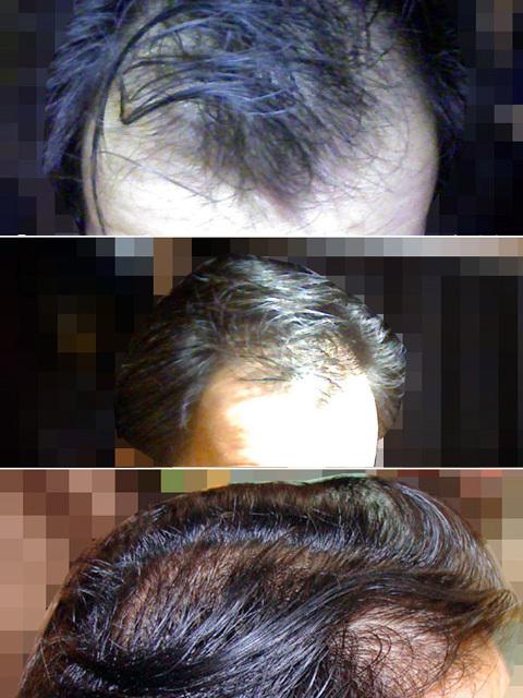 薄毛の写真
