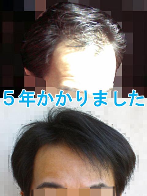 薄毛を治すのに5年かかりました