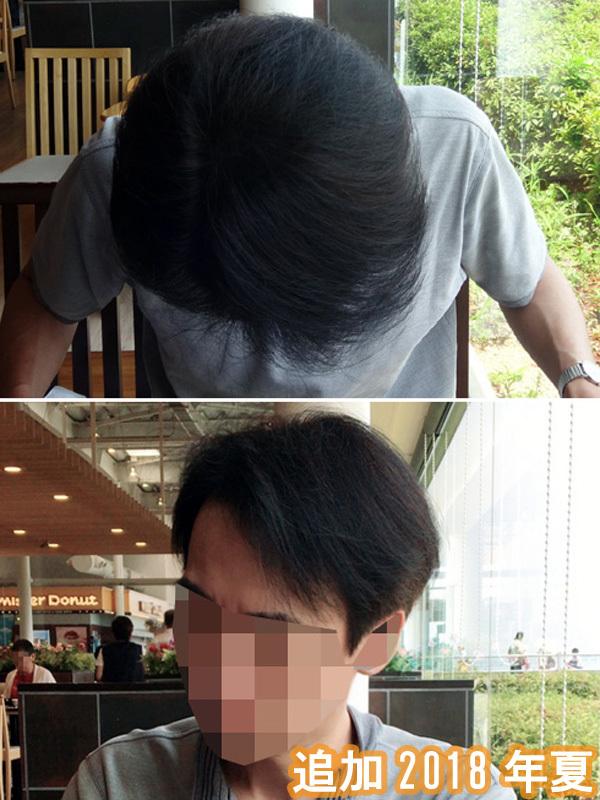 頭頂部と前髪の写真