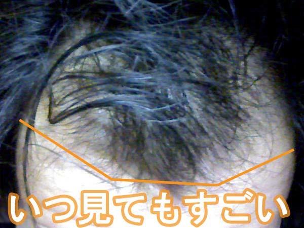 薄毛の生え際