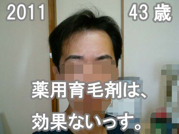 43歳育毛剤は効かない