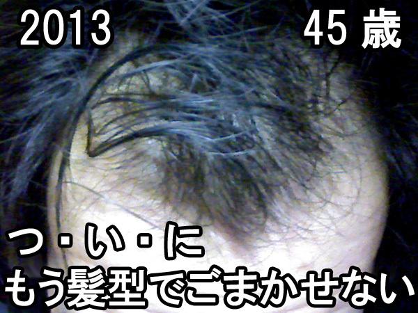 45歳ハゲた