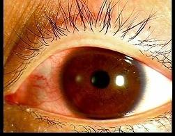 コンタクトトラブル・なんよう眼科クリニック