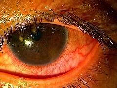 アルカリ目に入る・もりや眼科