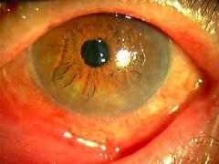 アルカリ性目に入るツカザキ眼科