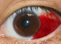 結膜下出血・伊奈病院