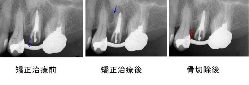 左上5矯正的挺出+歯冠長延長術