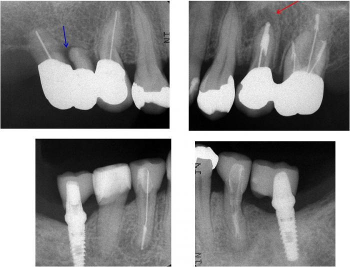 治療終了後の上下左右臼歯部