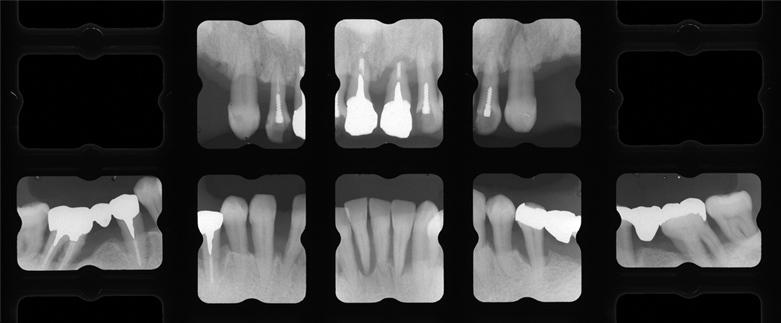 患者Wさん平成30年8月歯周治療開始時