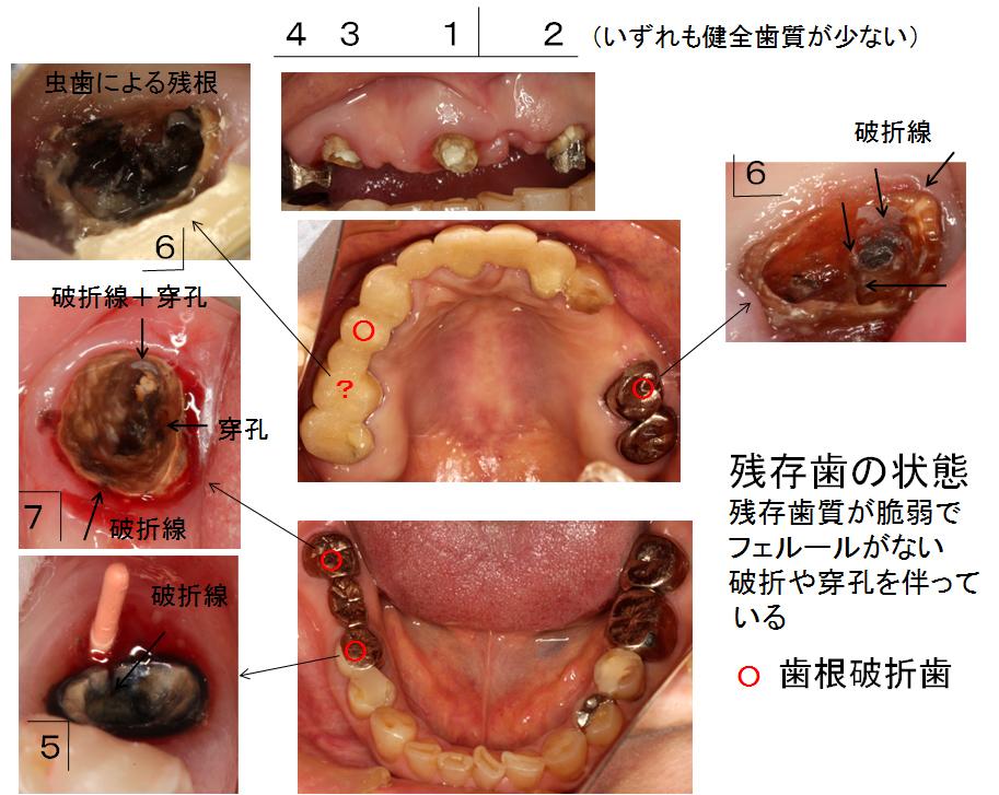 1歯ごとの状態