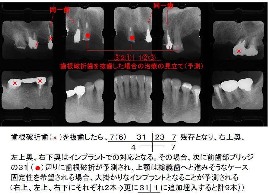 歯根破折歯を抜歯した場合の治療の見立て(予測)