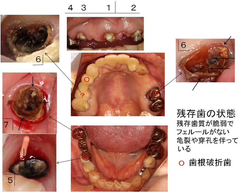 初診時の残存歯の状態