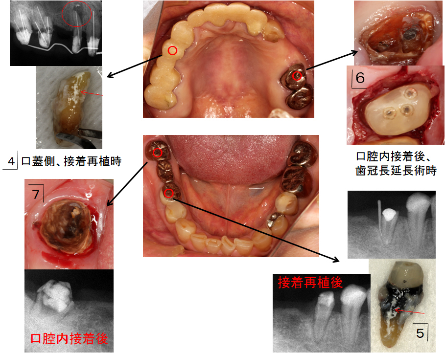 歯根破折歯の接着保存治療