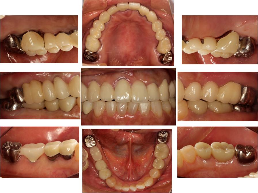 治療終了時の口腔内