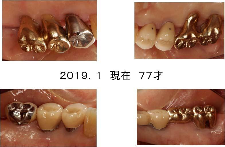 現在の口腔内(臼歯部舌側)