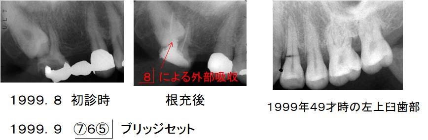 1999年初診時のレントゲン写真