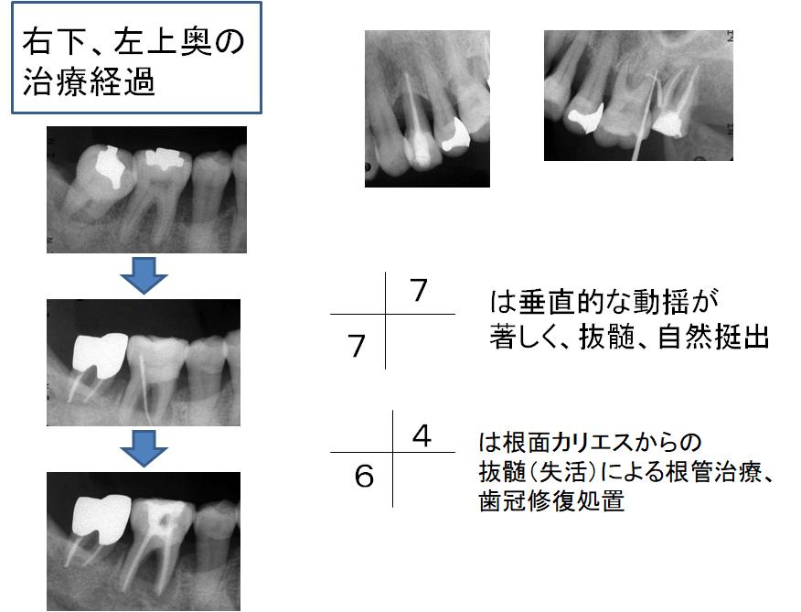 右下、左上奥の治療経過