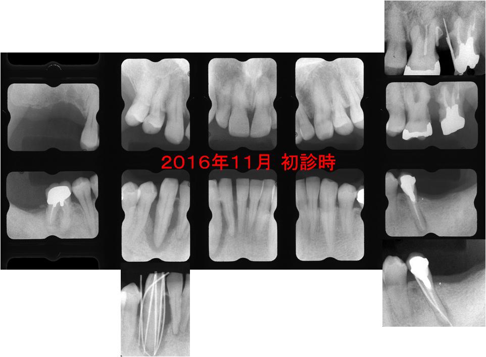 2016.11 初診時