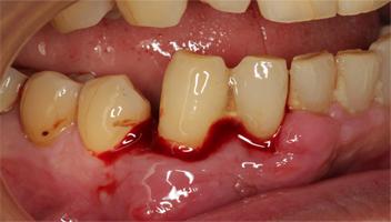 腫れてグラグラしていた右下前歯(犬歯)