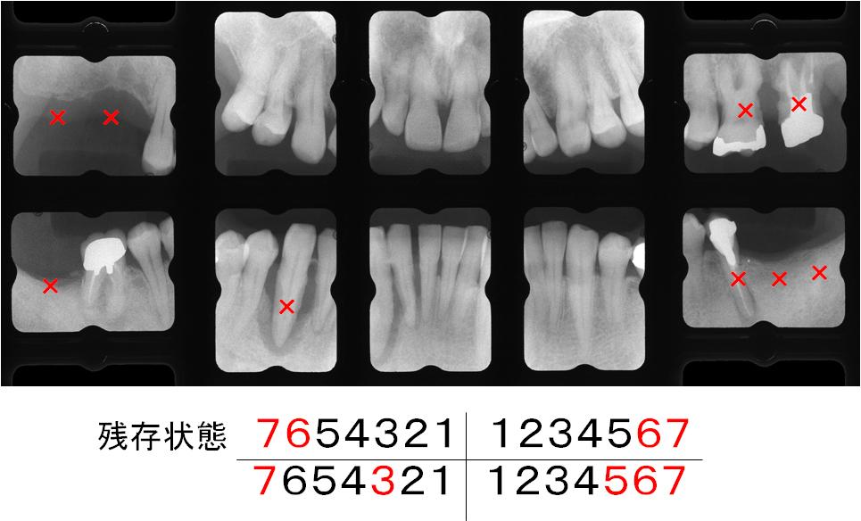 治療後に予想される歯の残存状態