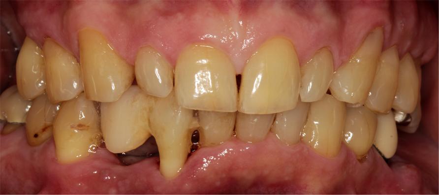 歯周基本治療終了時の口腔内