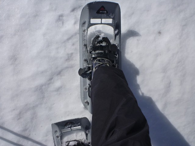 s04右足甲のベルト切れ